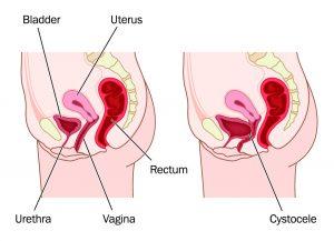 درمان پرولاپس واژن با لیزر