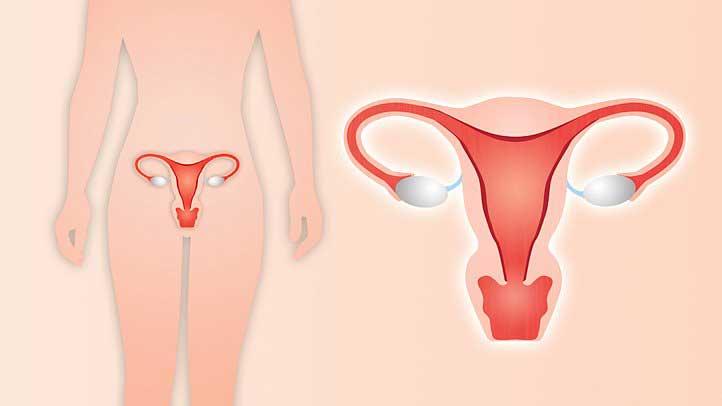 هیسترکتومی | تشخیص زودرس سرطان رحم