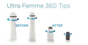 روش ULTRA FEMME 360 چیست؟