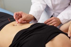 درمان درد قاعدگی با طب سوزنی