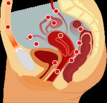 آندومتریوز و دردهای قاعدگی