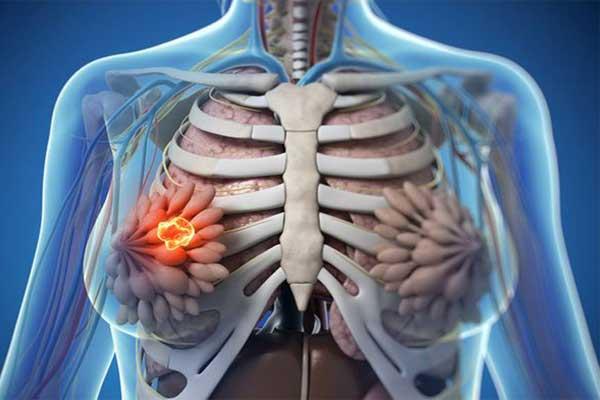 نشانه های سینه فیبروکیستیک