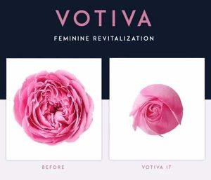 روش جوانسازی واژن Votiva