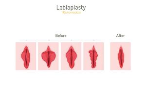 لابیاپلاستی